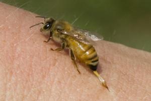 Bee Sting 2tight